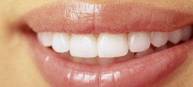 128315531_teeth-whitening_377x171