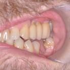 Dental Implants in York