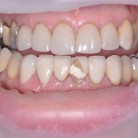 CEREC – Same Day Crowns in York