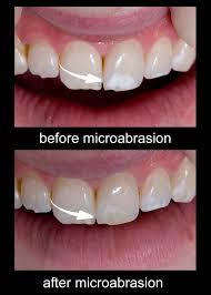 microabrasion