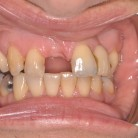 Dental Implants in York