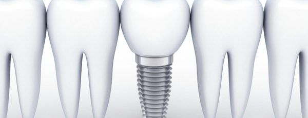 Dental Implants with a 5 Year Guarantee